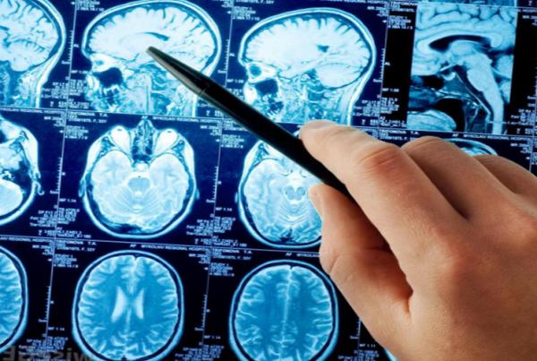Insult golovnogo mozga odna iz opasneyshikh patologiy