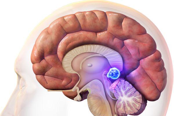 kista golovnogo mozga