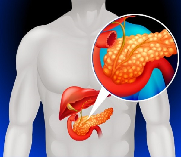 vidy formy pankreatita