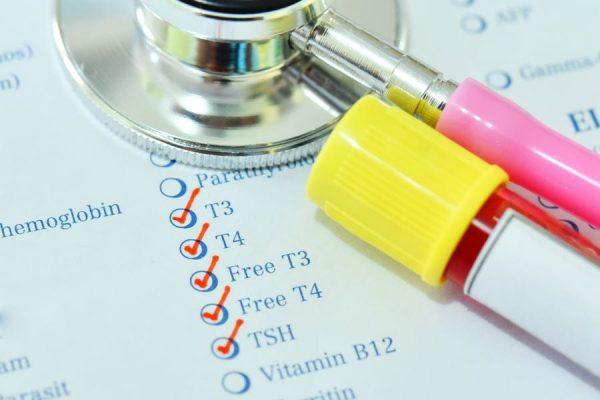 analiz na gormony