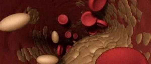 holesterin i diabet e1499355295429 700x300