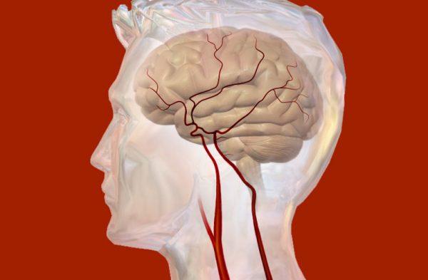 content intracranial pressure