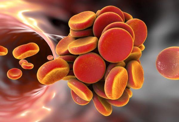Novye antikoagulyanty mogut pomoch v profilaktike retsidiva tromboobrazovaniya