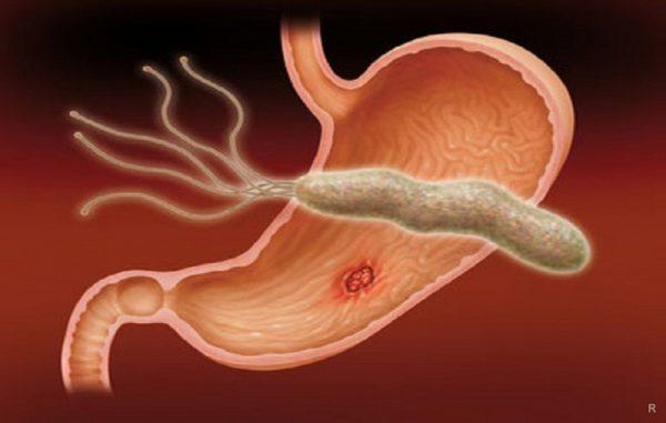helikobakternaya infekciya