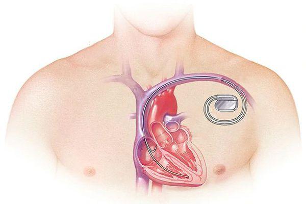 kardioverter defibrillyator s