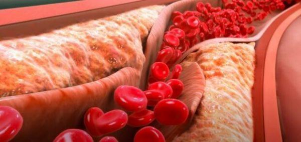 Как выявляют и рассасывают тромбы?